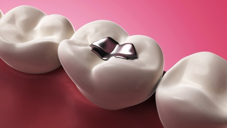 Amalgam-Fillings1-727x4091-727x409