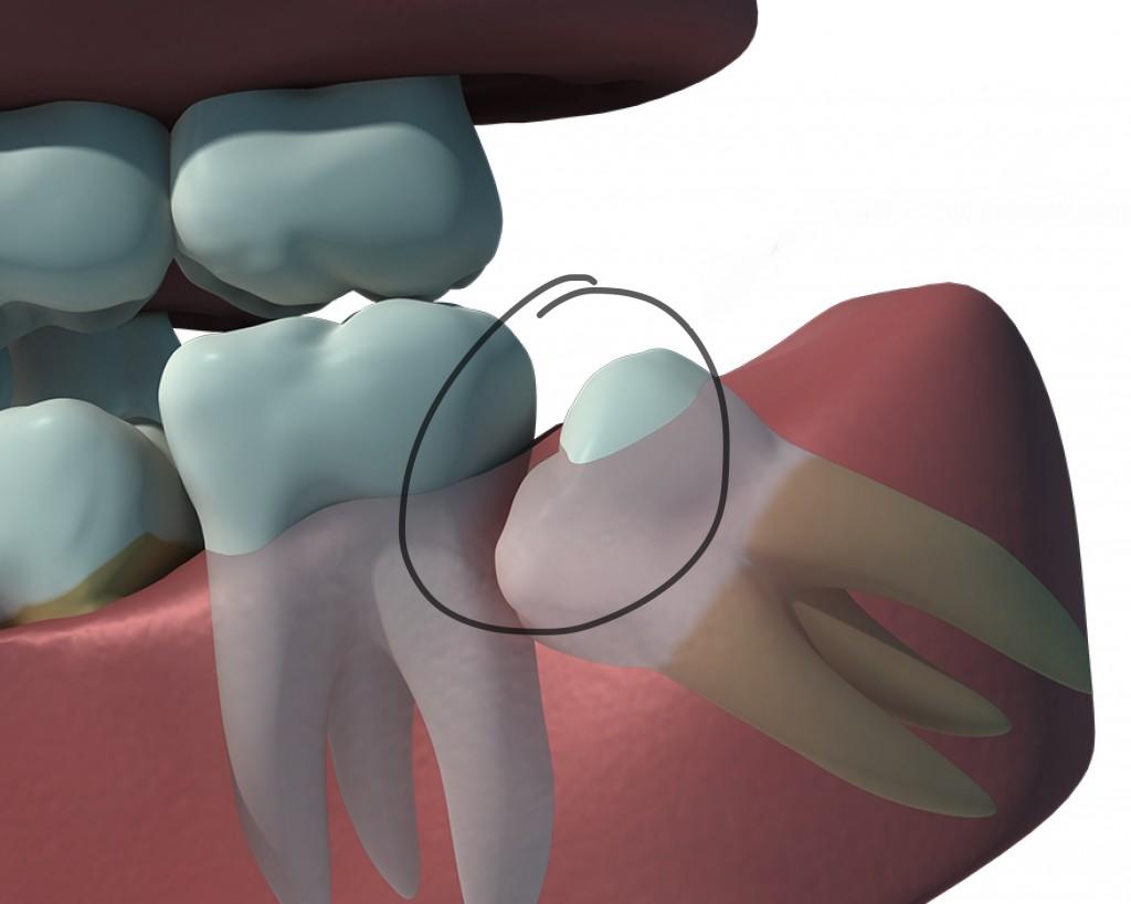 Wsidom Teeth2