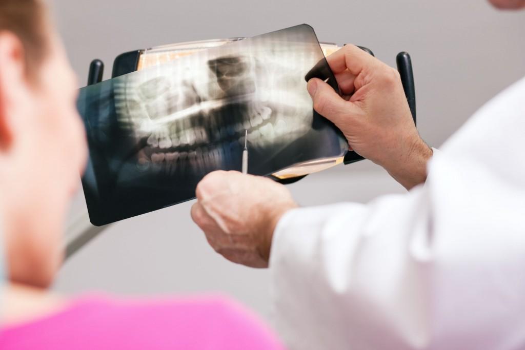 how to take digital dental x rays